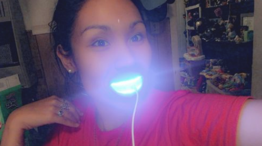 Diy Led Teeth Whitening – Save Money!!
